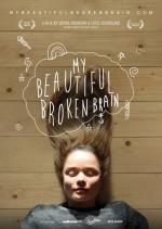 My Beautiful Broken Brain (2014) afişi