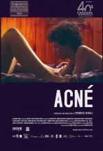 Acne (2007) afişi