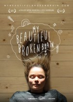 My Beautiful Broken Brain (2014) afişi